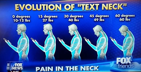 Text neck syndrome diagram