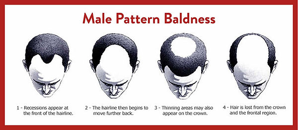 Infograhic on the stages of the male pattern baldness