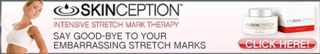 stretch marks treatmen cream