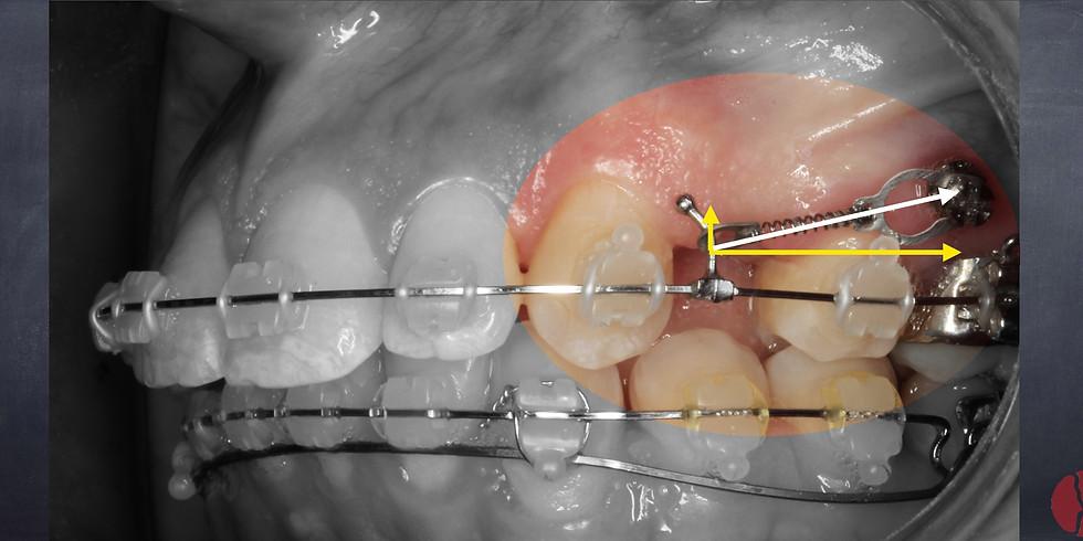 Imersão em Mini-implantes, do planejamento à biomecânica.