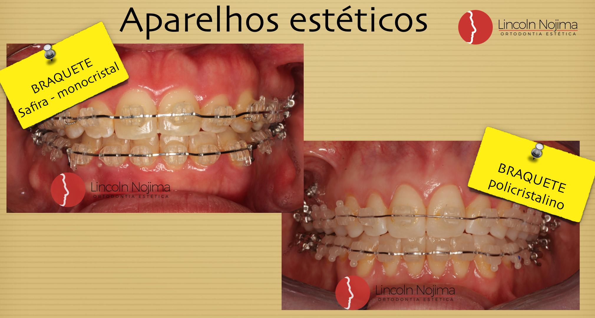 fotos.008 (2)