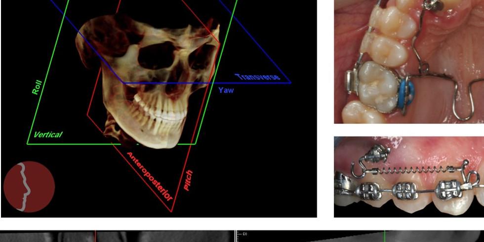 Programa de treinamento em tomografia cone beam e biomecânica ortodôntica aplicada.