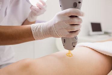 doctor-performing-laser-hair-removal-fem