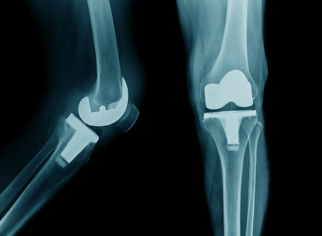 3 Tips for Maximizing Results of a Joint Replacement...Actions to be done TODAY to get ready!