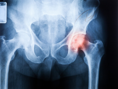 Osteoporosis and Physical Therapy