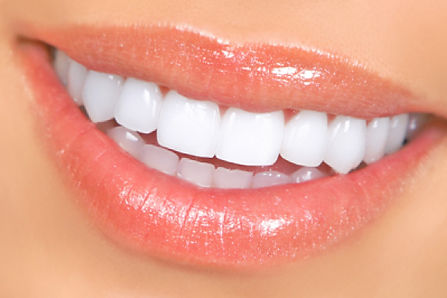 Veneers and Crowns in Stafford