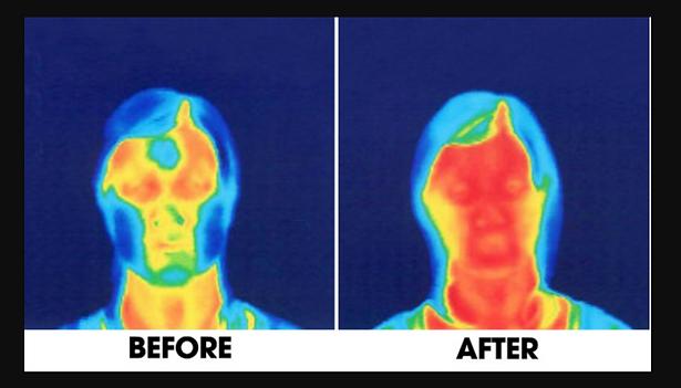 Afbeeldingsresultaat voor face yoga before after