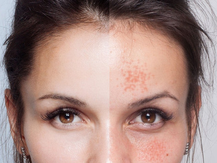 Fall Skincare Clean-Up