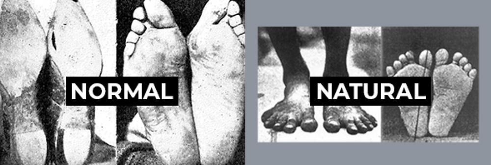 Normal vs natural footwear