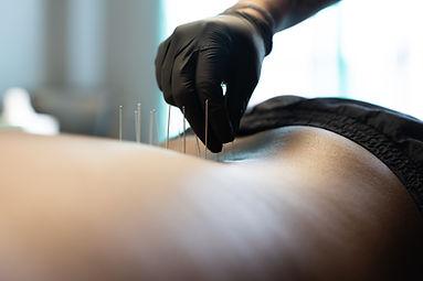 Kaizen Chiropractic Dry Needling