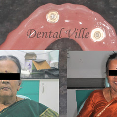 Happy patient after receiving implant denture