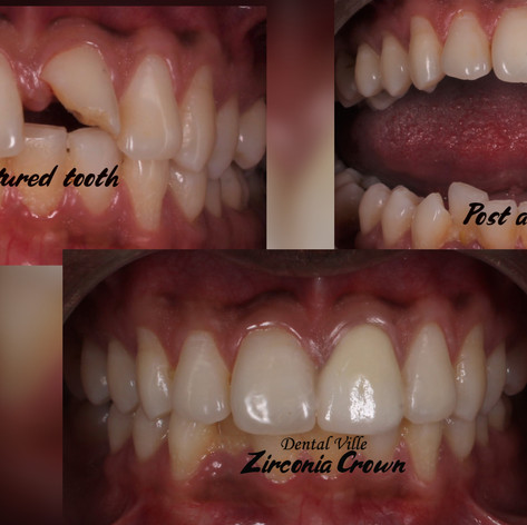 Broken teeth restoration with Post and Core
