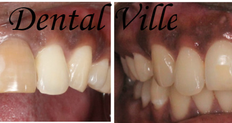 Correction of discolored teeth with Zirconia crown