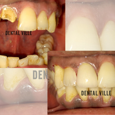Zirconia Crown to perfectly match the natural teeth