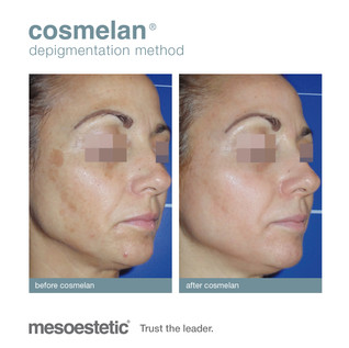 Cosmelan before & after