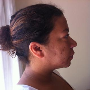 Before skin treatments