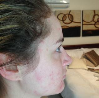 Before skin peels