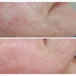 Plasma skin resurfacing