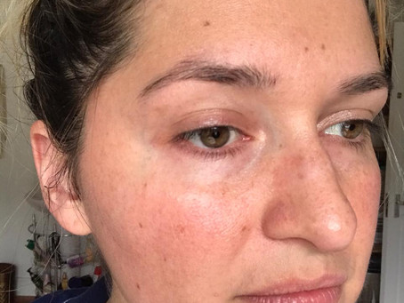 Kelli Clifton's skin analysis - what is causing her redness?