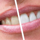 Tooth whitening and cosmetic dentistry at Lavender Denta Care