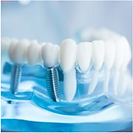 Dental implants and oral surgery at Lavender Dental Care