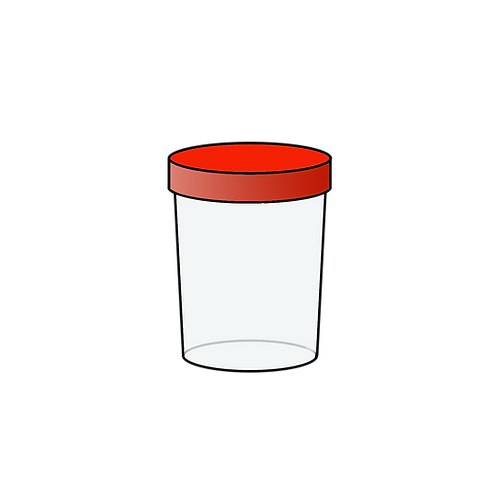 3.2. Белок в моче (количественный)