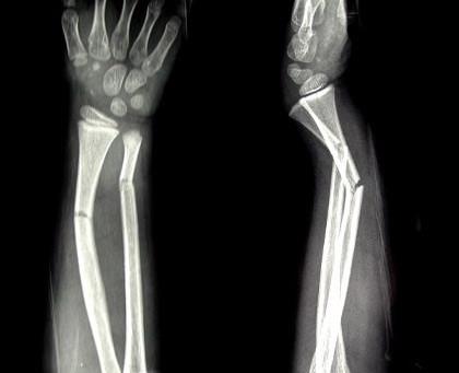 Broken Bone?