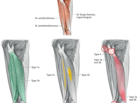 Grades of Muscle Injury
