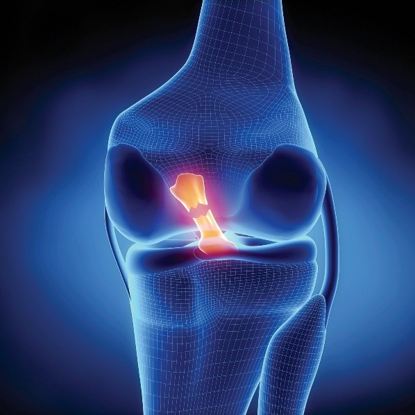 ACL of the knee