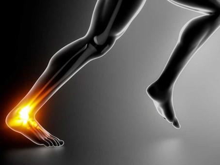 Achilles Injuries