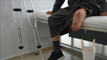Syrian refugees get prosthetic limbs in Turkey