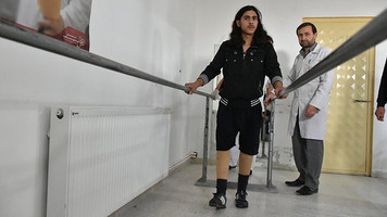 Syrian refugee boy able to walk again after getting prothetic leg
