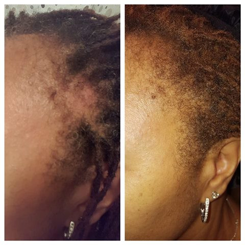 Edges need tender love and care (TLC)