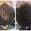 Thumbnail: Scalp Therapy Treatment Drops - 4oz. glass dropper - 100% natural