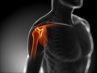 End Stage Shoulder Dislocation Rehab