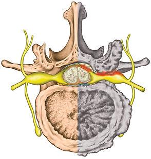 lumbar-stenosis.jpg