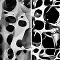 Osteoporosis - Infinite Health