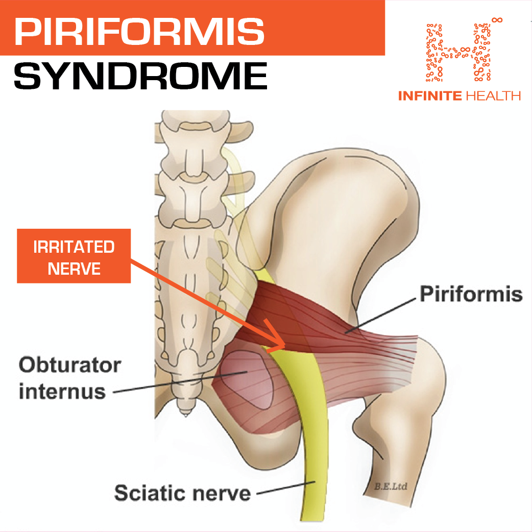 IG 3 - PIRIFORMIS SYNDROME-01.png