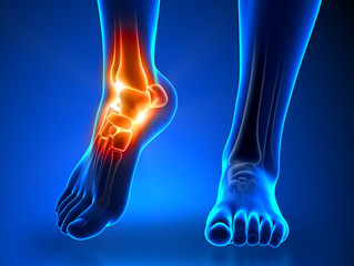 When to Get an Ankle X-Ray