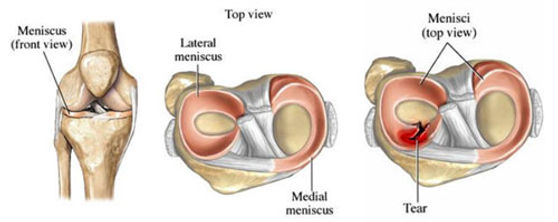 meniscal injuries.jpg