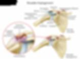 shoulder_impingement_syndrome