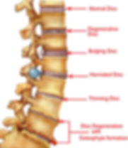 spine_conditions1.jpg