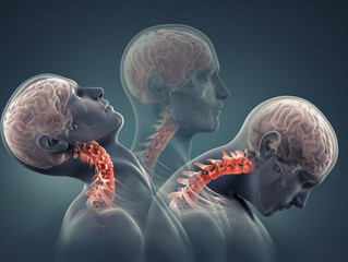 Neck Pain Series - Part 3 : Whiplash Associated Disorders (WAD)
