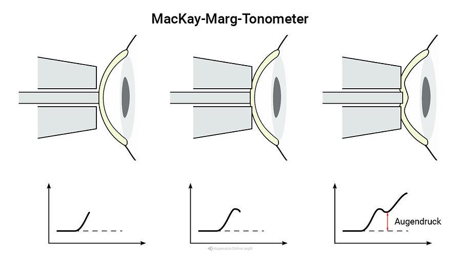 MacKay-Marg-Tonometer  (Tono-Pen® XL, Medtronics, Minneapolis, MN) Funktionsprizinzip Erklärung