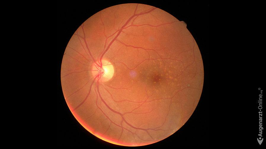 Intermediäre Altersbedingte Makuladegeneration mit retinalen Drusen im Bereich der Fovea.