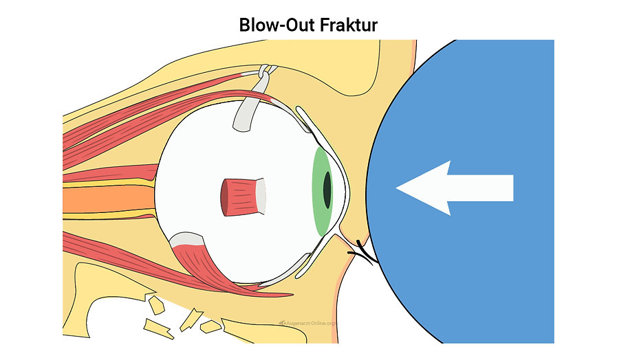 Blow-Out Fraktur, blowout fracture, Stumpfes trauma Augenheilkunde, Auge verletzt, Unfall, Prellung Augen