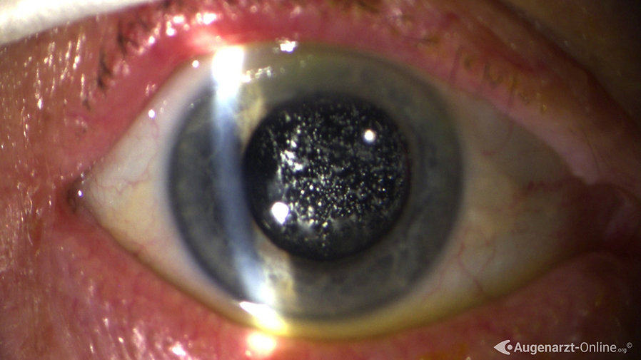Spaltlampenuntersuchung bei Patient mit Asteroider Hyalose oder Synchisis nivea