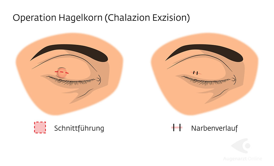 Hagelkorn Chalazion Exzision Operation
