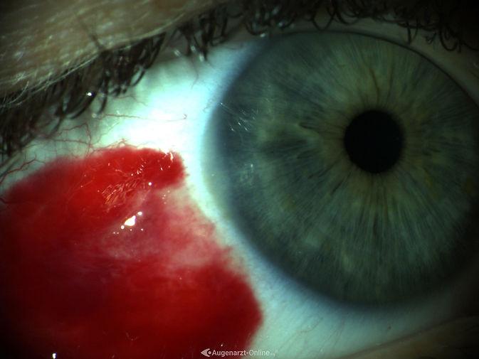 Blut-rotes Auge bei Blutung in der Bindehaut (Hyposphagma).