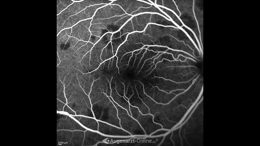 Fluoreszenzangiographie (00:47) bei akuter posteriorer Multifokaler Plakoider Pigmentepitheliopathie (APMPPE)